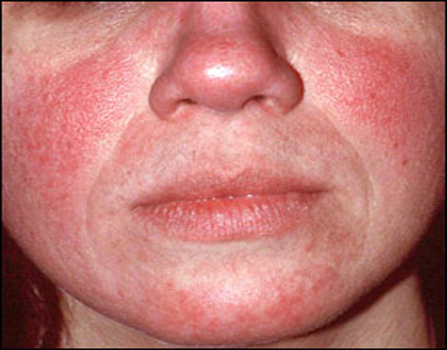 Facial Redness And Broken Capillaries Central