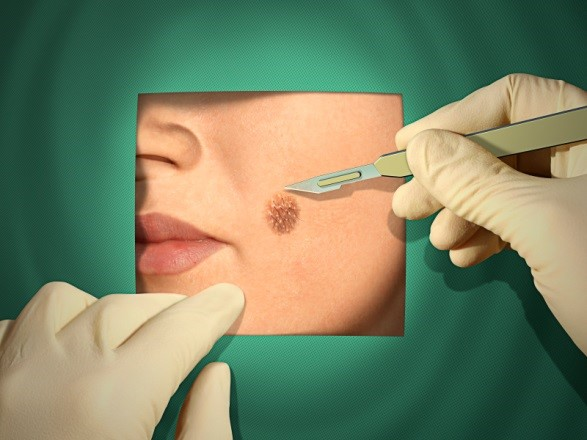 Surgical Treatment Of Skin Cancer Central Dermatology Clinic
